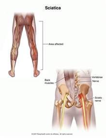 sciatica picture 1
