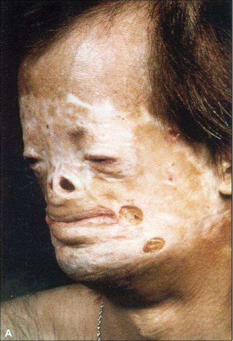 about herbs skin disease signs &symptoms picture 6
