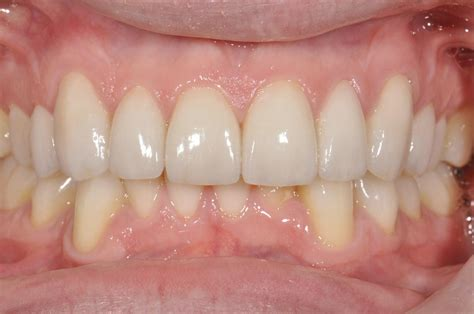 childrens teeth discoloration and veneers picture 9