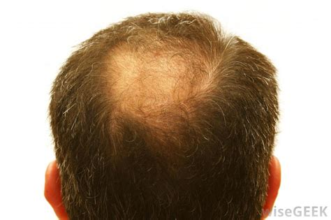 alopecia hair loss every where picture 7
