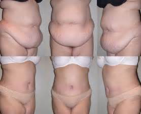 plastic surgery after weight loss picture 14