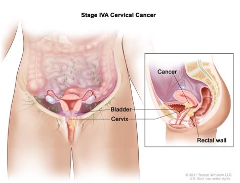 colon and liver cancer picture 10