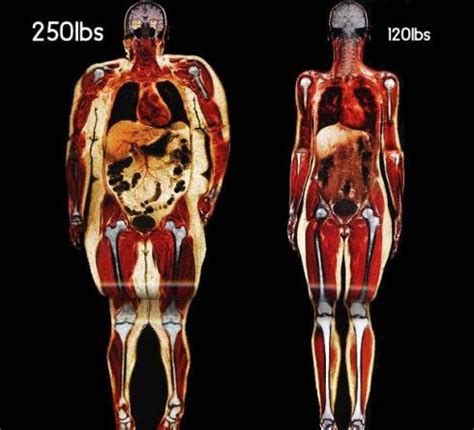 cyclobenzaprine weight gain picture 15