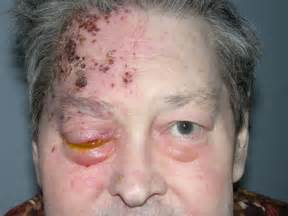 herpes zoster ophthalmicus com picture 9
