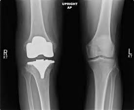 overstuffed knee joint replacement repair picture 1