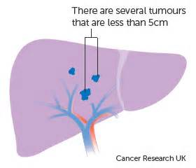 liver cancer staging picture 11