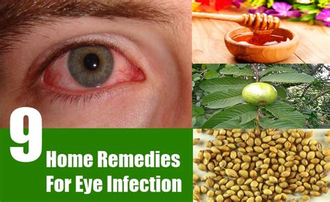 herbal remedy for eye infection picture 1
