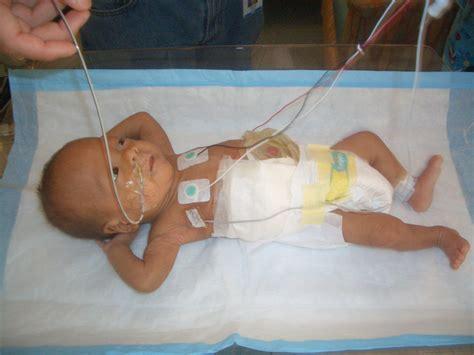 colon fistula surgery picture 18