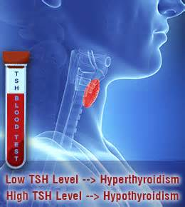 blood tests for thyroid picture 7