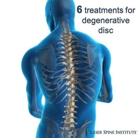 degenerative joint disease of the spine message board picture 13