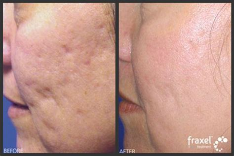 fraxel dual laser therapy acne scar removal medical picture 5