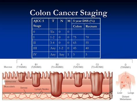 Staging of colon cancer by size of 15 picture 1