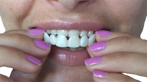 cheap snap on veneers for h picture 9