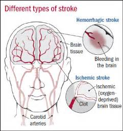 causes of blood clot in brain picture 19