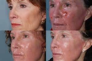 co2 spray acne picture 14
