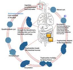 intestinal infection picture 14