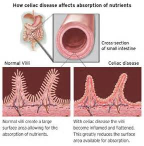 small intestine disorders symptoms picture 18