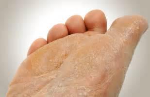 laser treatment for toenail fungus dallas picture 11