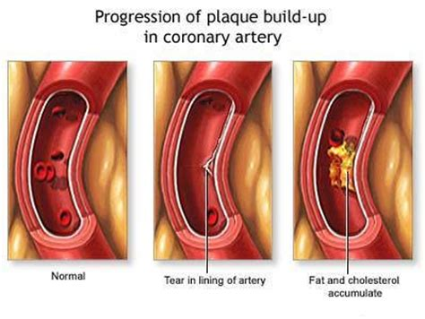 Cholesterol and plaque picture 8