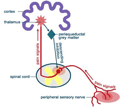 fibromyalgia pain relief picture 13