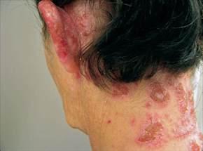 allergic reaction symptoms hair dye picture 17