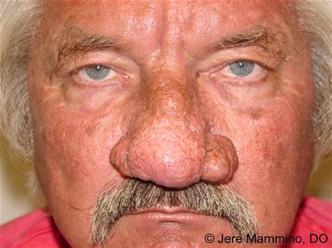 rosacea on nose picture 6