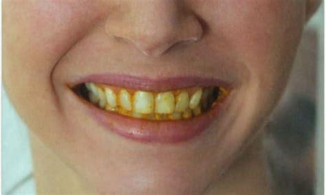 go smile teeth whitener picture 3