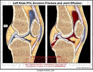 joint effusion knees picture 3