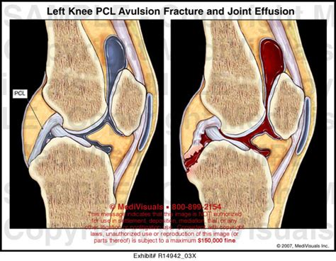 joint effusion picture 1
