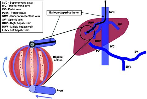 end stage liver disease picture 6