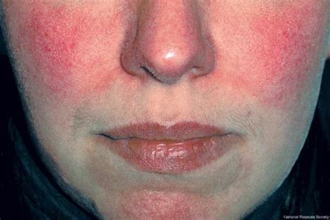 rosacea stage 4 picture 2