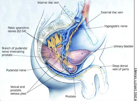 Prostate cancer that spread to lymph nodes picture 2