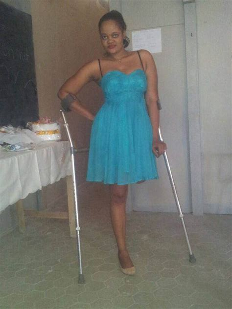 amputee peg leg picture 9
