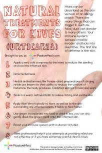 home remedy for hives picture 3