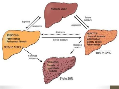 alcohol and the liver picture 1