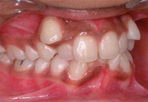 dog teeth growing in with another tooth picture 19