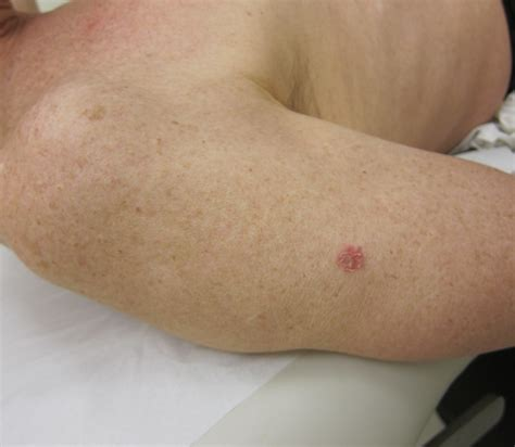 pictures of skin cancer lesions picture 11