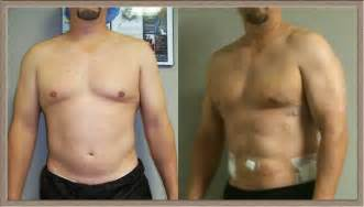 lipo marks for men picture 1