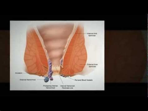 pregnancy and hemorrhoids picture 2