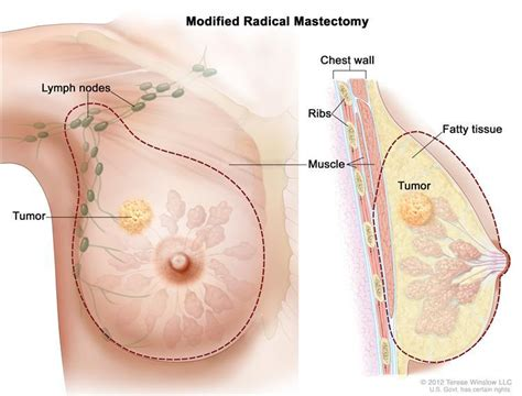 dissolve breast tumors picture 9