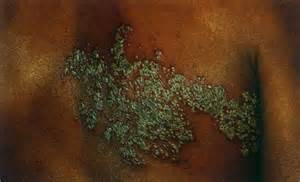 rx for herpes zoster picture 3