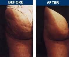 cellulite clinic ca picture 6