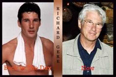 ard gere on plastic surgery picture 13