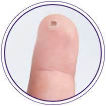 verrucas on fingers picture 1
