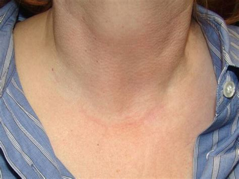 thyroid incision picture 10