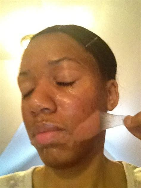 chemical ls on african american skin picture 7