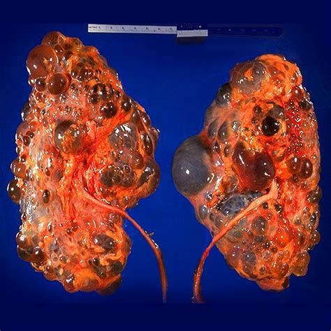 cystic picture 7