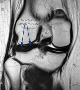 arthroscopy of knee joint picture 15