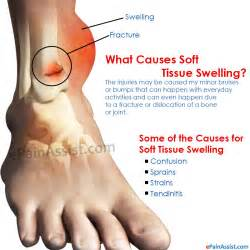 no appe e weight loss swollen foot are symptoms of picture 1