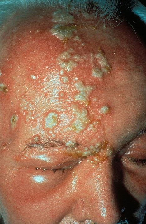 herpes in nose with back pain picture 3